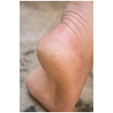 most Common Causes of Cracked Heels